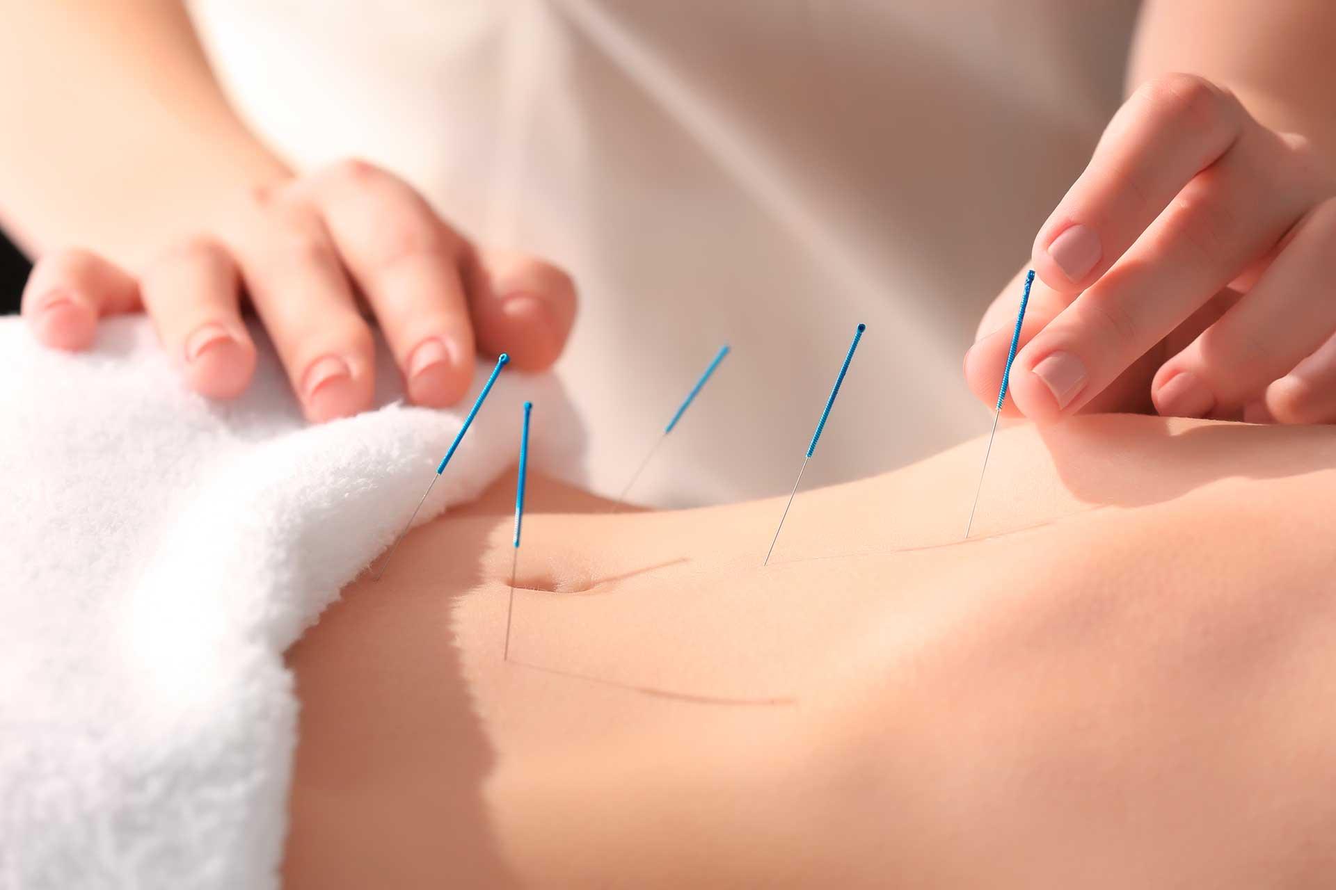 Dr-Di-Chen-Koenig-TCM-Akupunktur-Bauch